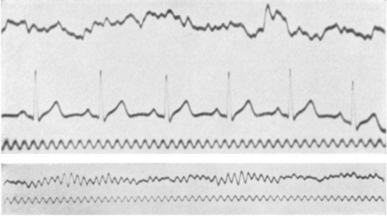 Image result for hans berger EEG