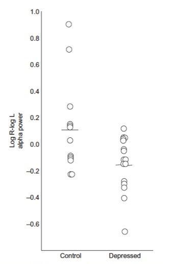 depression history EEG QEEG findings frontal alpha symmetry depression