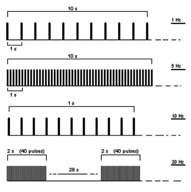 Rtms Figure2