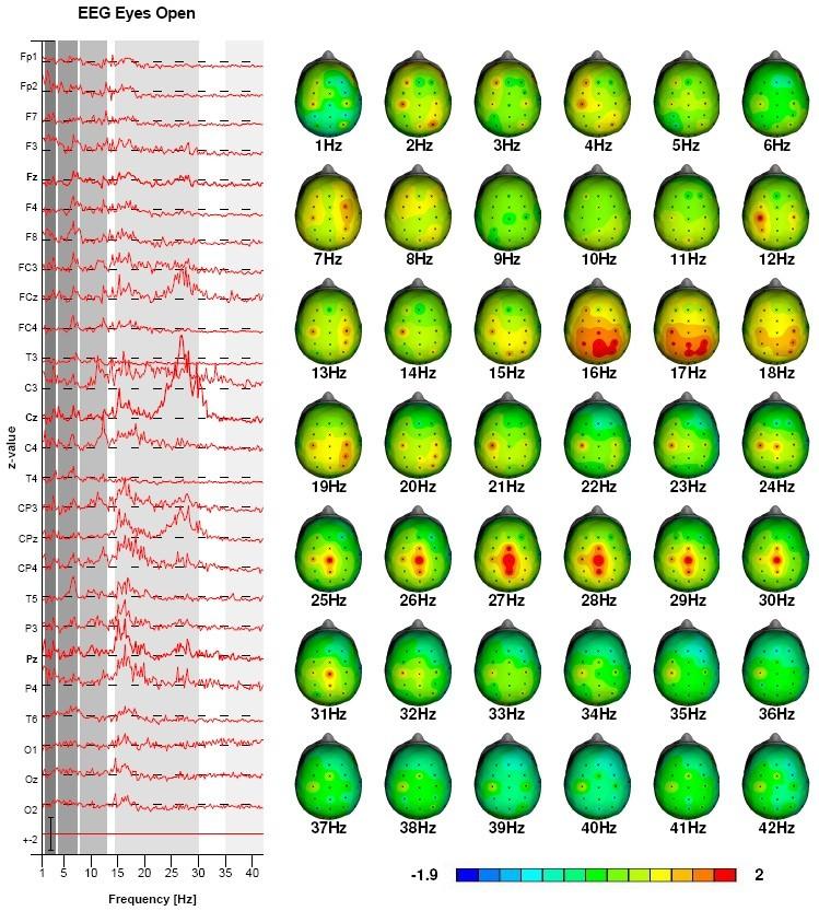 ADHD vigilance regulation sleep treatment with neurofeedback